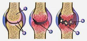 Obraba kolena
